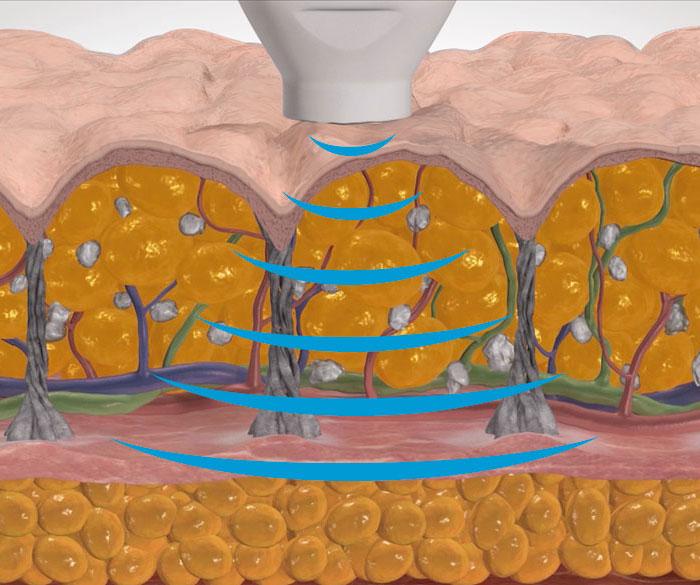 Emtone-mechanisch-gezielte-druckenergie